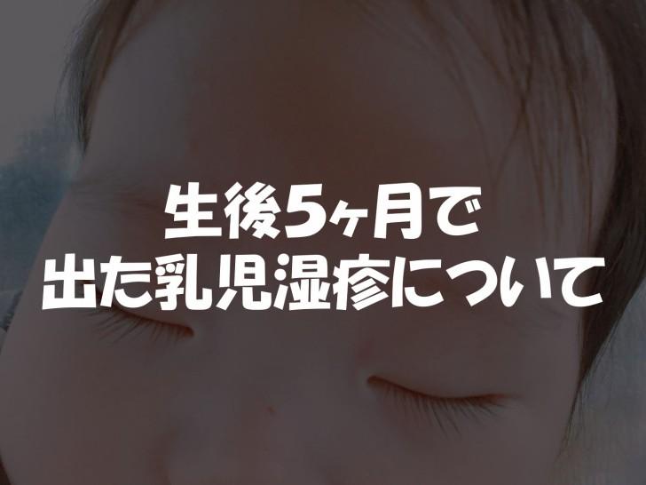 生後5ヶ月頃から出始めた顔の乳児湿疹 皮膚科に行っても完治せず